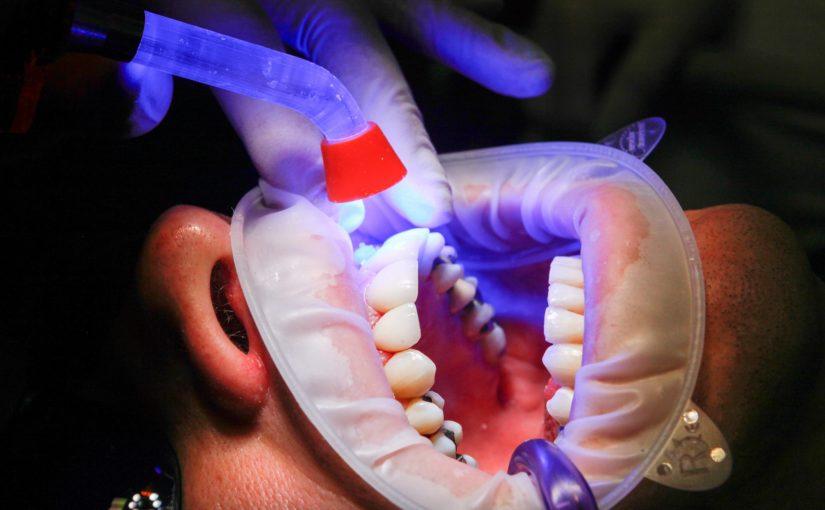 Zły sposób odżywiania się to większe niedobory w ustach natomiast dodatkowo ich zgubę