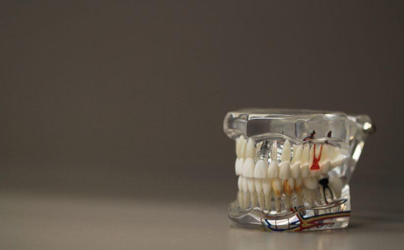 Zła droga odżywiania się to większe ubytki w zębach oraz dodatkowo ich zgubę